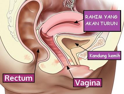 Hasil gambar untuk rahim turun