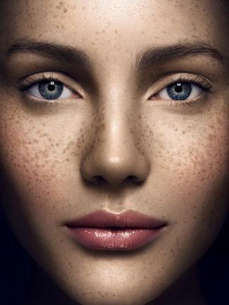 完美的除斑對策,完美的美白科技,美上美的美白除斑是業界第一,利用最新的除斑雷射跟美白雷射,幫您消除斑點,皮膚美白。美上美的美白除斑療程,給您有感的效果