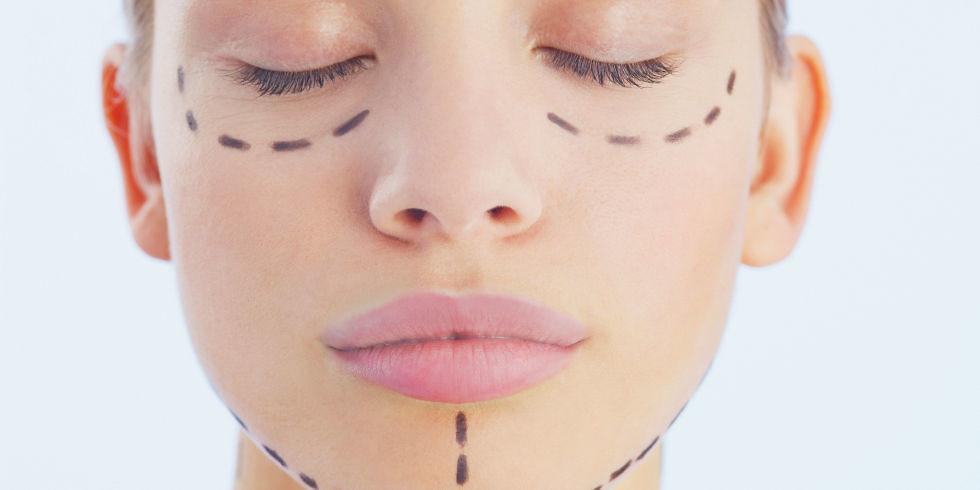 整形又稱整型或整容,美上美皮膚科有專業整形外科團隊,給您完美的五官比例再造。整形通常指臉部整型,像割雙眼皮、隆鼻、種睫毛等等。美上美專做割雙眼皮跟隆鼻
