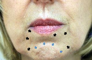 肉毒桿菌幫您瘦小臉,擁有尖下巴。肉毒桿菌的作用是放鬆肌肉,肉毒桿菌主要會打在肌肉的部位,使肌肉體積縮小。到美上美皮膚科的施打肉毒桿菌素讓您臉型更完美。