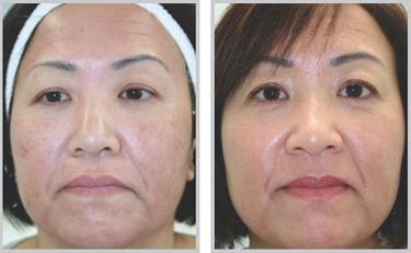 脈衝光是痘疤治療的好選擇,脈衝光治療痘疤有一定的效果,脈衝光全面打擊痘疤跟老化的問題,脈衝光是痘疤治療的推薦方法之一,要治療痘疤要有規劃,才能有好臉蛋
