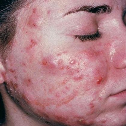 囊腫型青春痘不好治療,如果是嚴重的囊腫型青春痘會留下難看的凹痘疤,所以要積極治療。治療囊腫型青春痘可以用痘痘針、海綿為針、飛梭雷射、口服A酸來做處理。