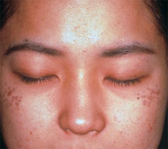 消除斑點推薦皮秒雷射跟淨膚雷射,這兩台是除斑新科技!顴骨斑是後天所造成的斑點,顴骨斑的黑色素在皮膚深層的地方,經由皮秒雷射跟淨膚雷射治療後會淡化跟消除