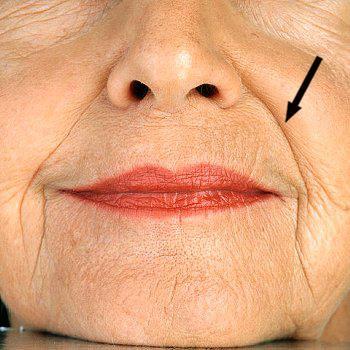 隨著年齡的增長出現討厭的法令紋,法令紋的成因有年齡、遺傳體質、臉部表情等。撫平法令紋靠玻尿酸跟肉毒桿菌和童顏針,美上美的玻尿酸跟肉毒桿菌撫平您的法令紋