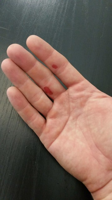 Blisters from 1/2 mile of tree trimming...