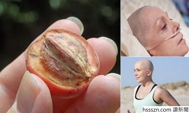 cancer-cure-these-4-plants-kill-75-of-cancer-cells-and-are-much-more-effective-than-other-cancer-treatments_630_378