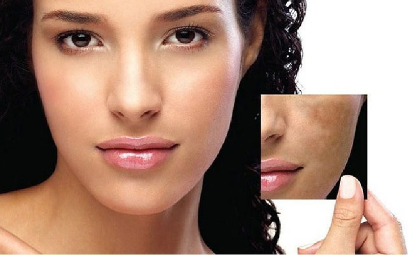 Image result for Skin Discoloration - The Cause and Treatment of Melasma