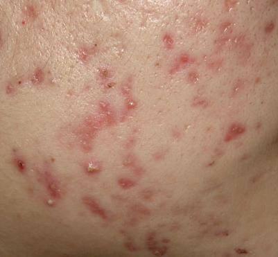 色素痘疤是假性痘疤,色素痘疤平均半年後就會消失,也可以透過淨膚雷射、杏仁酸換膚、深度美白等方式,來解決色素痘疤!美上美的淨膚雷射、杏仁酸換膚是你的首選