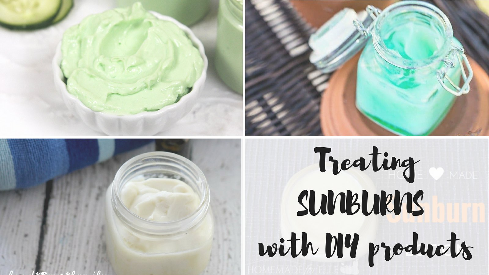 Treating sunburns with DIY products