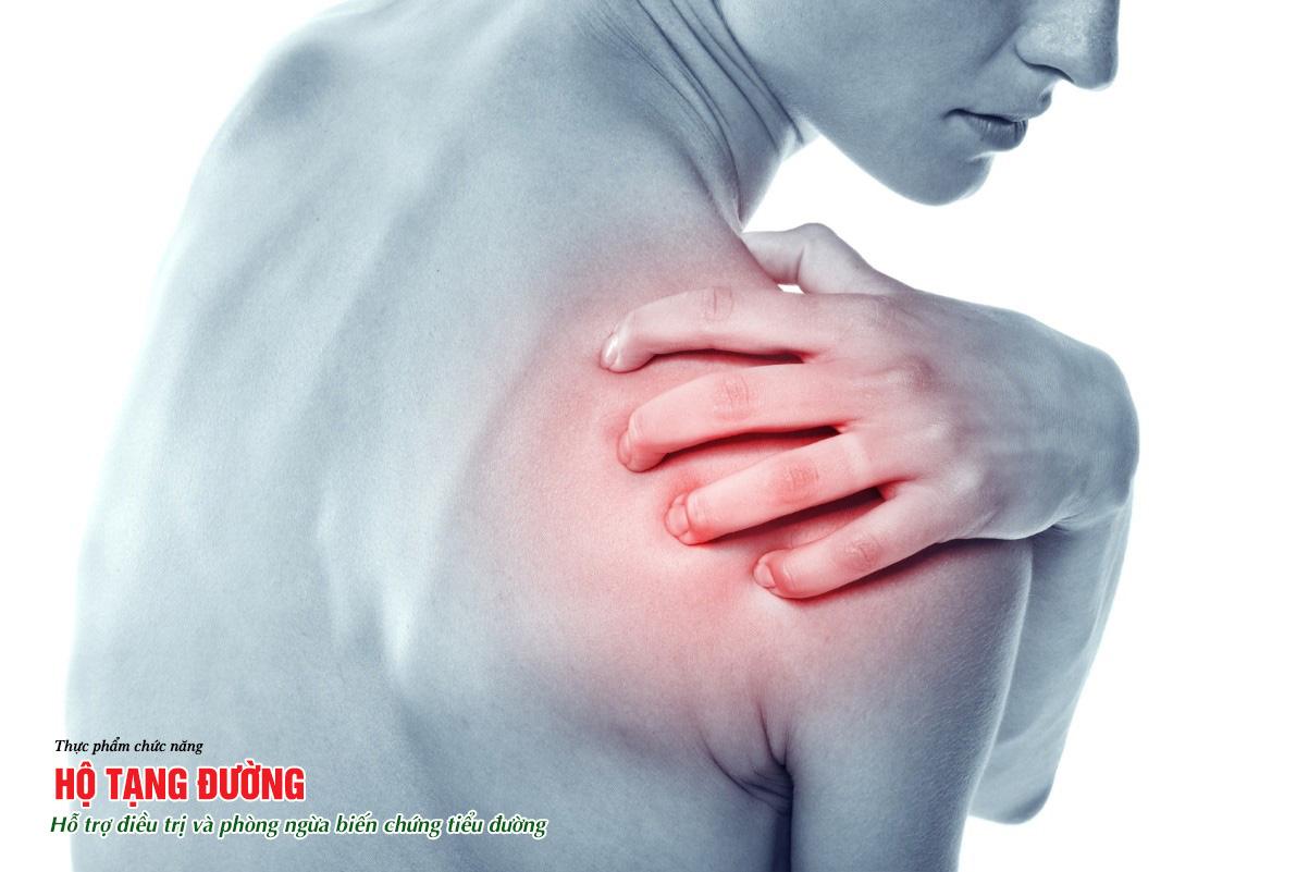 Viêm xương khớp có thể ảnh hưởng tới bất kỳ khớp nào trên cơ thể