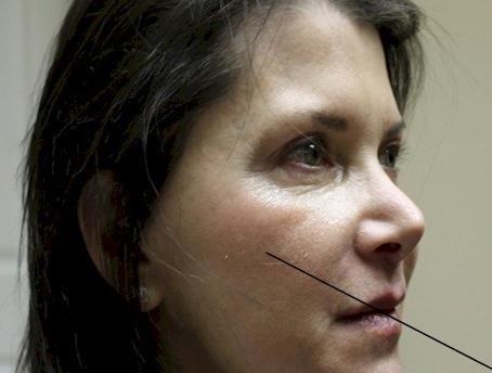 貓咪紋多在臉部下方會呈現凹陷狀,很像淚溝,有貓咪紋會容易顯的疲憊沒精神。貓咪紋的最佳改善方式是玻尿酸加童顏針,美上美的玻尿酸加童顏針有效改善您的貓咪紋