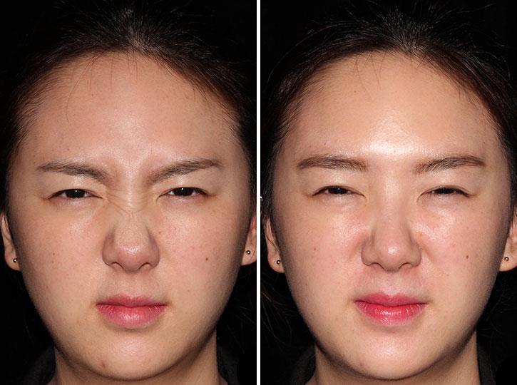 笑的時候有皺鼻紋看起來好醜啊,皺鼻紋是皺鼻時鼻子肌肉收縮所產生的皺紋,肉毒桿菌跟玻尿酸消除您的皺鼻紋。美上美皮膚科的肉毒桿菌跟玻尿酸,讓您沒有皺鼻紋。