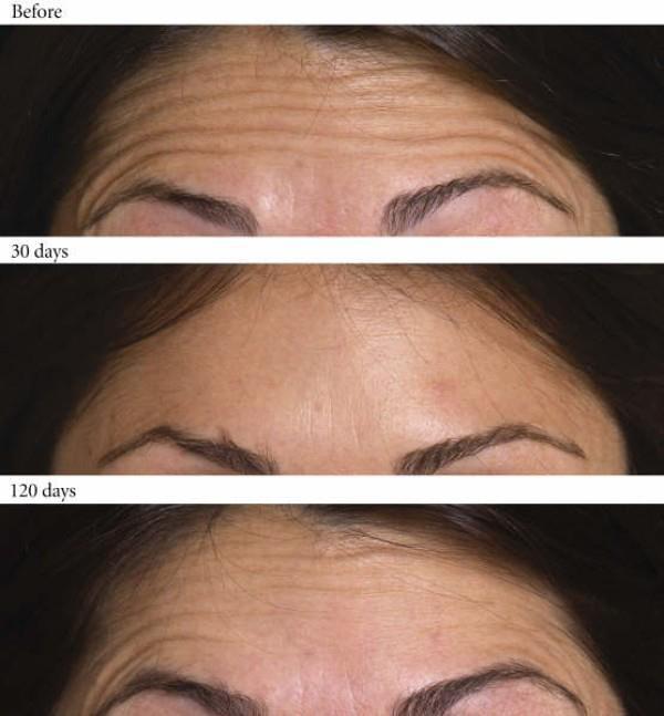 年紀輕輕就有抬頭紋,讓人覺得老了好幾歲。抬頭紋的形成是因為皮膚缺水或遺傳,怎麼去除抬頭紋呢?美上美的玻尿酸、肉毒桿菌、皮秒雷射、童顏針撫平你的抬頭紋!