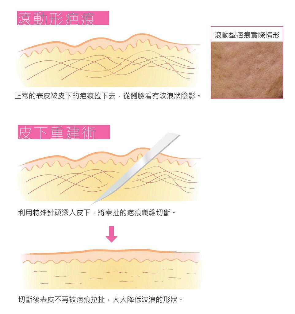 嚴重型的凹痘疤治療,只打飛梭雷射有用嗎?當然還要搭配外科手術治療來醫治凹痘疤!痘疤治療要盡早,美上美皮膚科的外科手術治療,可以讓痘疤治療更完整更有效。