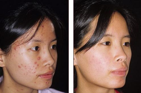 海綿微針對於清除粉刺及治療青春痘特別有效,海綿微針從肌底做調理並有效控油,減少毛孔阻塞及發炎。海綿微針常用於治療青春痘、清粉刺、控油、面皰等肌膚問題。