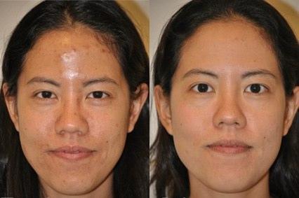 痘疤治療的推薦雷射是淨膚雷射,淨膚雷射治療痘疤有不錯的效果,痘疤治療中凹痘疤跟色素痘疤能用淨膚雷射來治療,做痘疤治療要有完整的規劃,才會有無痘疤的臉蛋