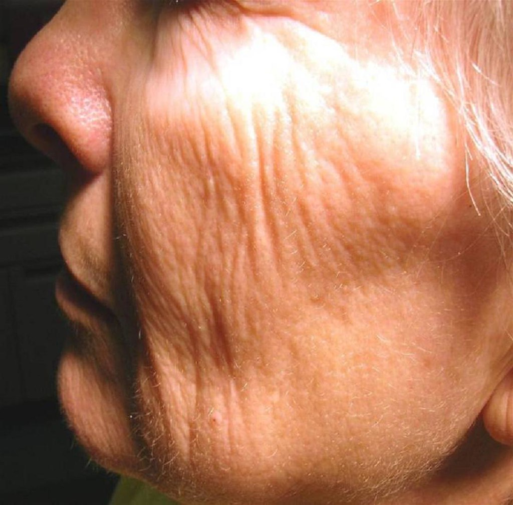臉部鬆弛如何改善?皮膚鬆弛如何改善?皮膚鬆弛是很多人頭痛的問題,療程該如何選擇?美上美皮膚科的皮秒雷射、飛梭雷射解決鬆弛困擾!想解決臉部鬆弛請來美上美