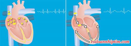 Nhịp tim bình thường và nhịp tim rung nhĩ