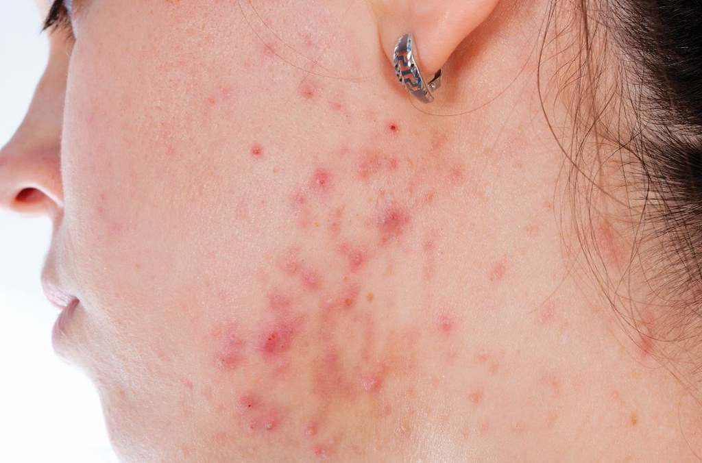 用對的控油方法,也可以擁有好膚質。美上美皮膚科的二氧化碳雷射能有效控油並抑止青春痘的發生,給您一張沒有青春痘的好臉蛋。想做青春痘治療請找美上美皮膚科。