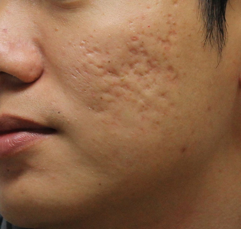 痘疤治療的專家請找莊盈彥醫師,美上美皮膚科是痘疤治療專科診所!莊盈彥醫師專治凹痘疤跟凸痘疤,有任何的痘疤問題找莊盈彥醫師就對了!美上美讓您沒有痘疤困擾