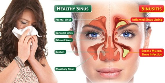 Tanaman Obat Untuk Penyakit Sinusitis