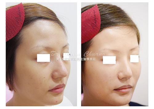 淚溝的填補是玻尿酸裡需要高技術的技巧,玻尿酸如果打不好,會造成難看的不平整。如果淚溝很明顯,眼袋會看起來很大,代表臉部開始老化!玻尿酸解決您淚溝問題。
