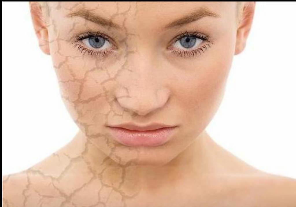 導致皮膚乾燥的原因很多,皮膚乾燥就是皮膚的角質層缺水。皮膚乾燥是指皮膚缺乏水份令人感覺不適的現象。美上美運用玻尿酸跟氨基酸營養點滴,解決皮膚乾燥問題。