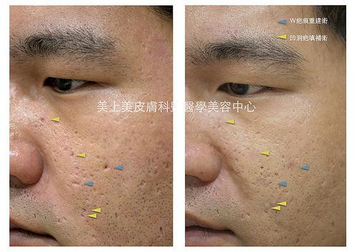 痘疤治療中最強的外科手術,解決連飛梭雷射都治不好的深痘疤,這手術是W疤痕重建術,堪稱痘疤治療中最有效的手術,嚴重的凹痘疤跟冰鑿型痘疤想做痘疤治療要靠他