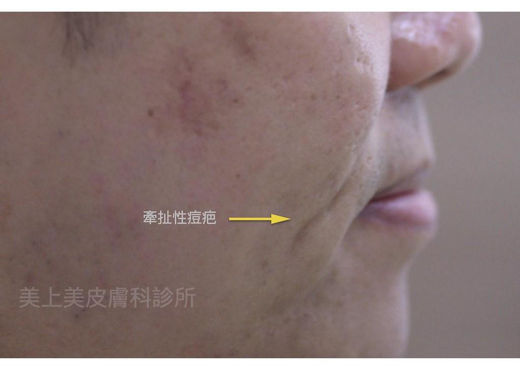 痘疤治療的最佳手術為皮下重建術,專治嚴重的凹痘疤!痘疤治療中難治的凹痘疤要靠皮下重建術,是治療凹痘疤的最佳方法。美上美的痘疤治療幫您擺脫痘疤找回美麗肌