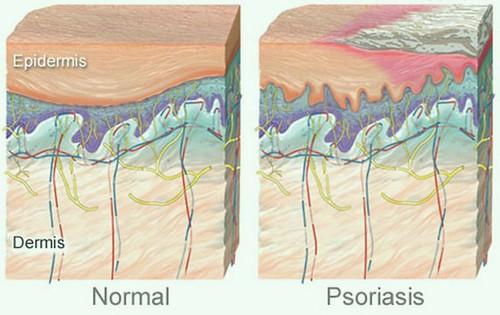Obat Salep Psoriasis Di Kepala