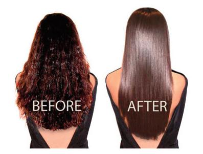 phục hồi tóc hải phòng