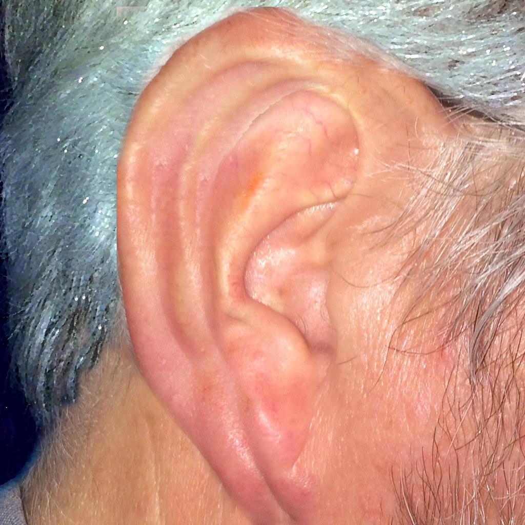 Listening Ear