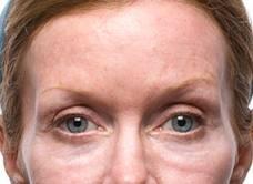 夫妻宮等於太陽穴,隨著年齡增長,夫妻宮體積會大量流失,就會凹陷。美上美給您幾種改善方法,可以施做玻尿酸注射、童顏針注射、晶亮瓷注射、自體脂肪移植填補。