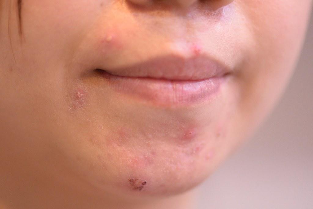 美上美皮膚科提供多種的果酸換膚來做痘疤治療,像是專做痘疤治療的TCA深層換膚,治療青春痘疤痕跟淡疤的杏仁酸換膚等等。果酸換膚幫您清粉刺,淡化痘疤及治療痘疤