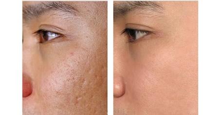 凹痘疤要怎麼治療?凹痘疤可以治的好嗎?美上美皮膚科是痘疤治療的專科診所,要做痘疤治療交給美上美皮膚科就對了。美上美的飛梭雷射專治療凹痘疤,給您好肌膚。