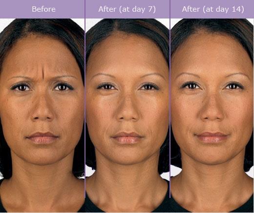 現代人壓力大經常眉頭深鎖,導致皺眉紋產生,皺眉紋常給人很嚴肅跟沒自信或很擔憂的樣子,但注射肉毒桿菌就能撫平眉間的皺眉紋,美上美的肉毒桿菌讓您沒有皺眉紋