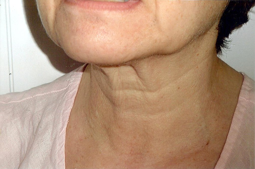 頸紋是老化的象徵,要如何預防頸紋?如何才能消除頸紋?建議平時身體坐直,拉伸頸部肌肉,做好保養!消除頸紋就要靠玻尿酸跟童顏針,玻尿酸跟童顏針有效撫平頸紋