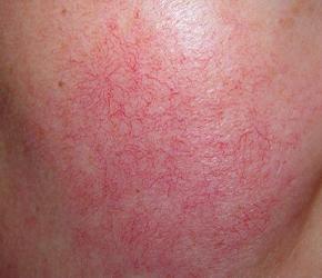 微絲血管擴張是非常普遍的症狀,好發於臉部及下肢,發生在臉部時會看起來不太雅觀。需施打脈衝光多次可達到改善的效果,美上美的脈衝光針對血管擴張特別有成效。