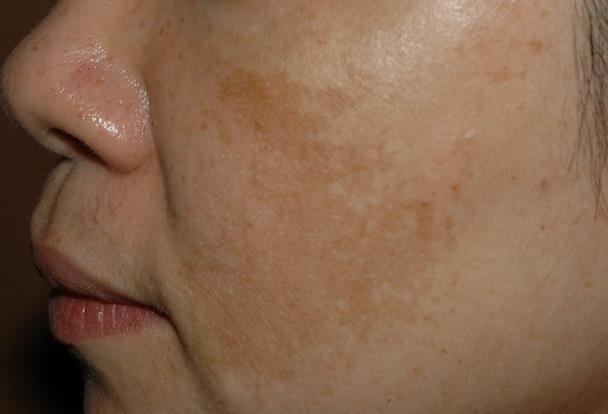 肝斑是棘手的斑點,消除肝斑要搭配多種治療,像皮秒雷射搭配酸類換膚!消除斑點推薦皮秒雷射跟淨膚雷射,這是雷射除斑最有效的方式,想消除肝斑從生活習慣改善起