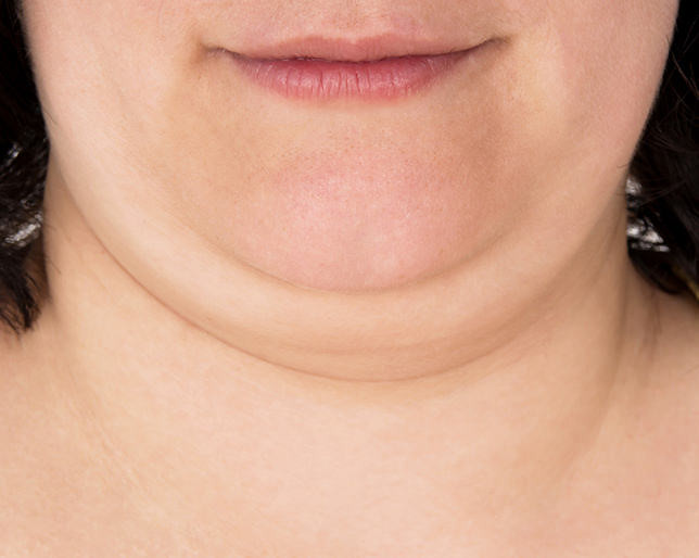 雙下巴不是肥胖或老年人的專利,年輕人或瘦子也會有雙下巴!更慘的事,有些民眾減都減不掉雙下巴。美上美皮膚科的埋線拉提、音波拉皮、電波拉皮幫您消除雙下巴。