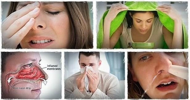 Tanaman Obat Sinusitis