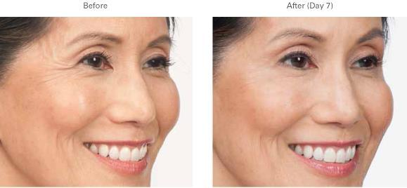 年齡增長加上用眼過度,魚尾紋開始不斷出現。魚尾紋是臉部容易顯老的部位,美上美的玻尿酸、肉毒桿菌、皮秒雷射、童顏針撫平你的魚尾紋,讓你重返年輕,臉部凍齡
