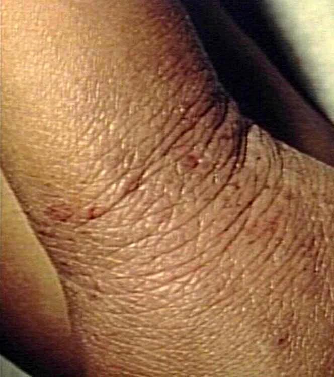 治療痘疤跟治療青春痘及異味性皮膚炎的專科診所是達昇皮膚科。針對痘疤治療跟青春痘治療有特別的醫治方法。想治療異味性皮膚炎跟老人性皮膚癢疹的患者就來達昇。