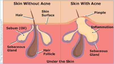 達昇皮膚科專攻痘疤治療跟青春痘治療及異味性皮膚炎。老人性皮膚癢疹發生原因複雜,達昇皮膚科有特別醫治方法。被異味性皮膚炎跟青春痘困擾的患者,來達昇就對了
