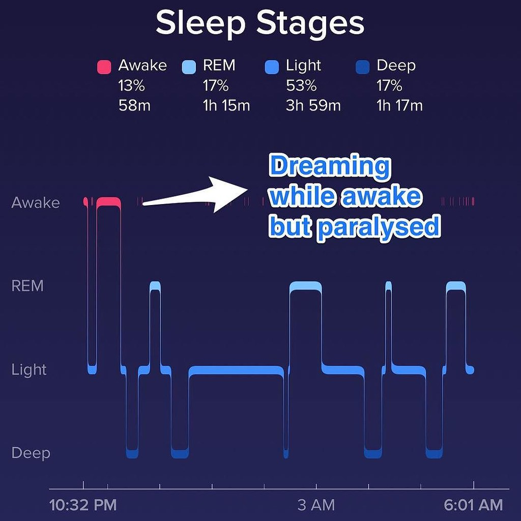 5 stages of sleep