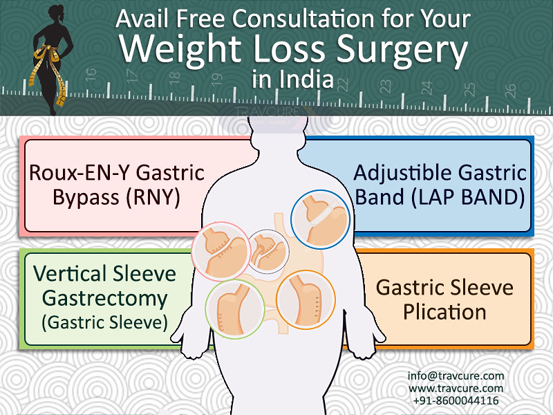 Avail Free Consultation For Your Weight Loss Surgery In In Flickr