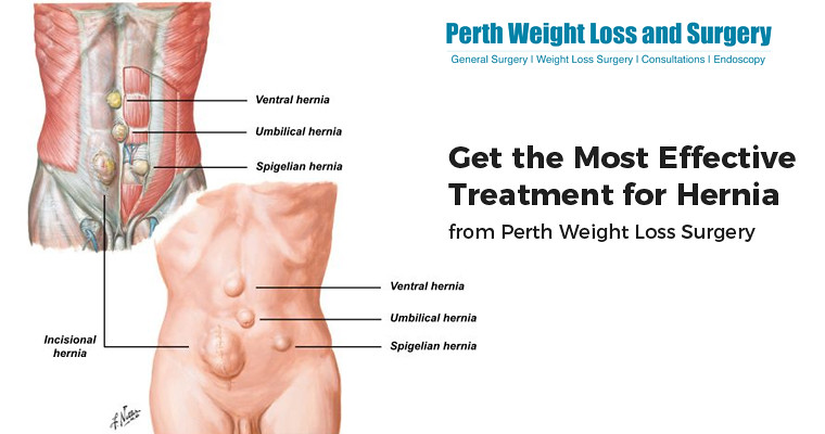 Get The Most Effective Treatment For Hernia From Perth Wei Flickr