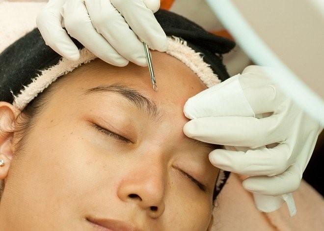 粉刺是一種常見皮膚病,粉刺分為白頭粉刺和黑頭粉刺。治療粉刺的方法,大多為施打淨膚雷射跟做氨基酸換膚。美上美運用淨膚雷射跟氨基酸換膚解決您困擾已久的粉刺