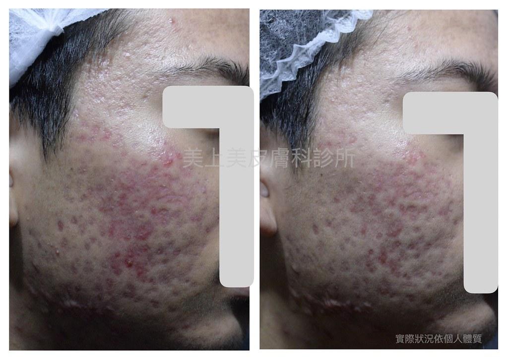 早期痘疤治療是痘疤治療中很重要的環節,最好的痘疤治療時間是痘疤產生的六個月內,這時候痘疤組織還沒有完全形成,靠著外科手術及雷射光療可以讓痘疤治療更有效