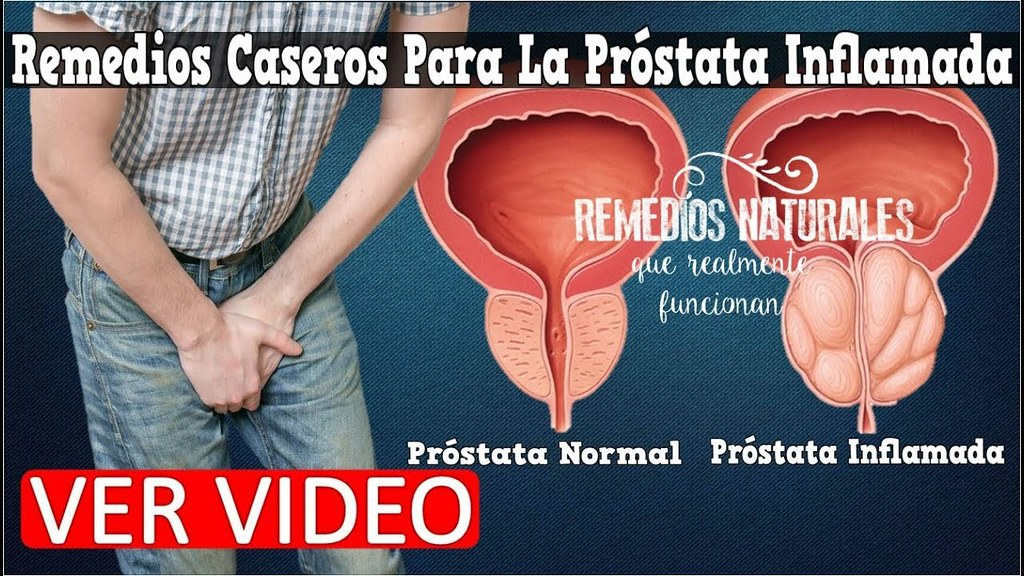 prostata inflamada remedios